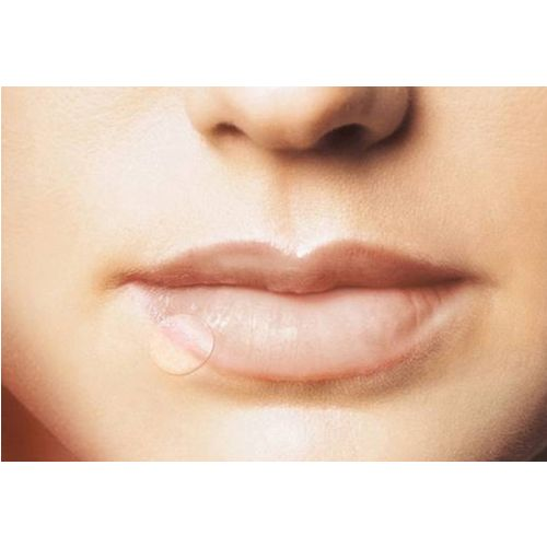 HERPES PATCH bei Lippenherpes 15 mm 15 St 70428